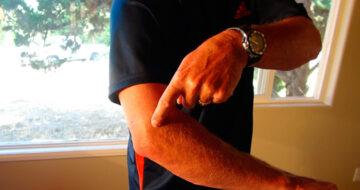 Ejercicios para recuperarse de una epicondilitis, la lesión del pádel