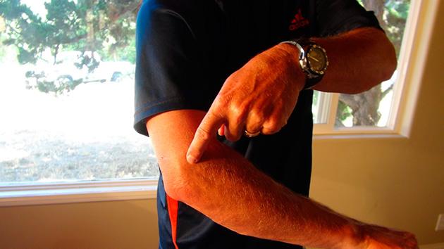 brazo izquierdo frio y con dolor