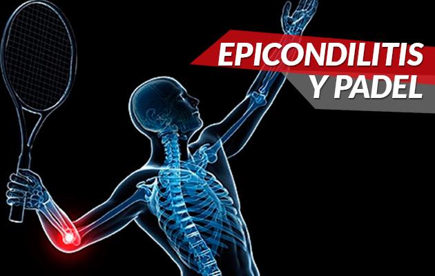 ¿Qué es y como afecta la epicondilitis al jugador de pádel?