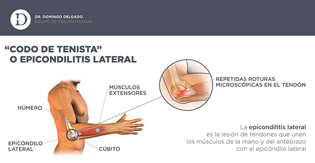 Qué es y como afecta la epicondilitis al jugador de pádel? - Zona de ...